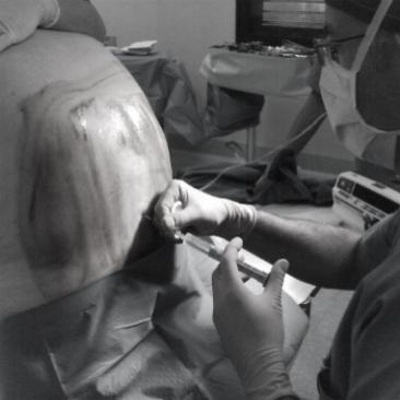 intervento-ernia-addom